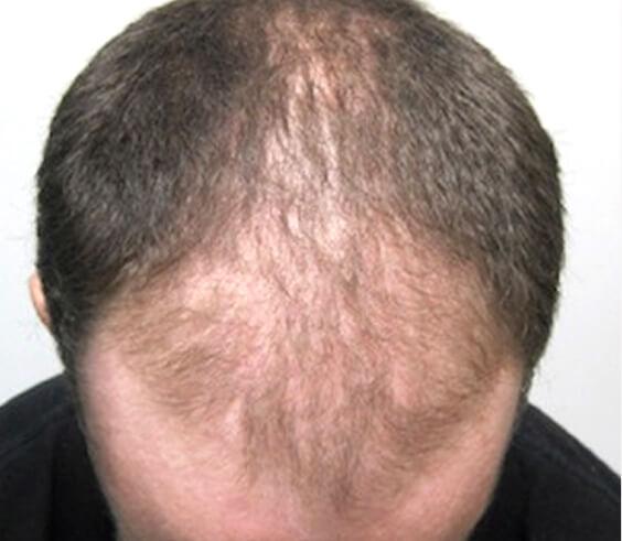 Das Präparat gegen den Haarausfall bei den Frauen