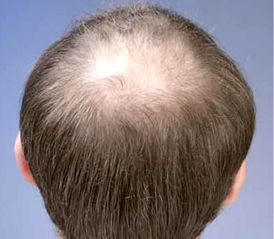 Das Mittel für die Wiederherstellung des Haares yunsey