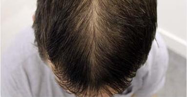 Der Komplex die Vitamine für die Verstärkung des Haares und der Nägel